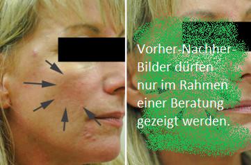 Minions Bilder Für Whatsapp Deutsch Inspirierend Stick Anti Cerne Correcteur Bourjois 03 Das Bild